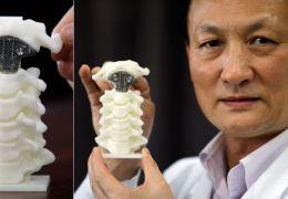 Impressora 3D fabrica primeira prótese de vértebra na China